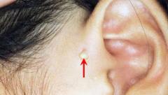 基础知识 | 全面分析耳前瘘管及其摘除术!